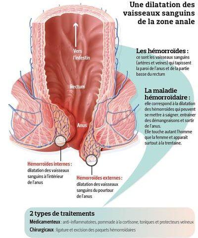 Que peut-on faire contre les hémorroïdes douloureuses? Ces méthodes ont fonctionné